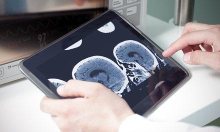 L'impact de l'intelligence artificielle et du deep-learning sur la radiologie
